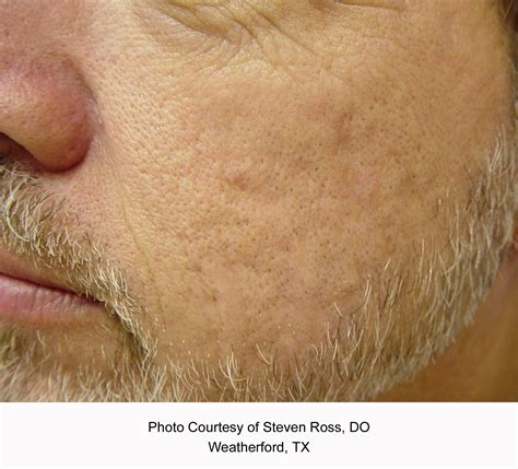 Laser Therapy | Western Reserve Dermatology, Inc